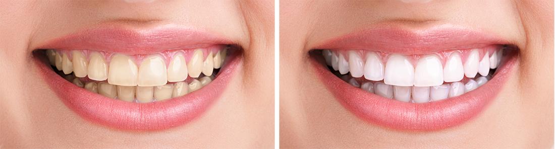 Bezpečnost bělení zubů
