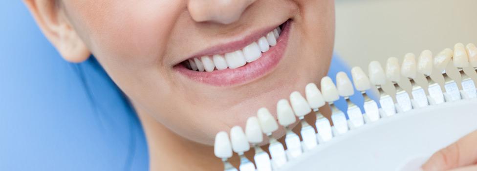 Fakta o bělení zubů