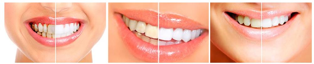 Jak funguje bělení zubů