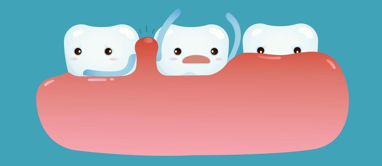 Léčba zánětu dásní